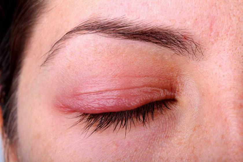 vörös foltok a szemen és hámlás hidegben az arcot vörös foltok borítják