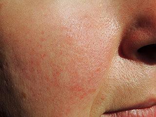 piros foltok gyakran megjelennek az arcon vörös viszkető foltok a fejbőrön a haj alatt