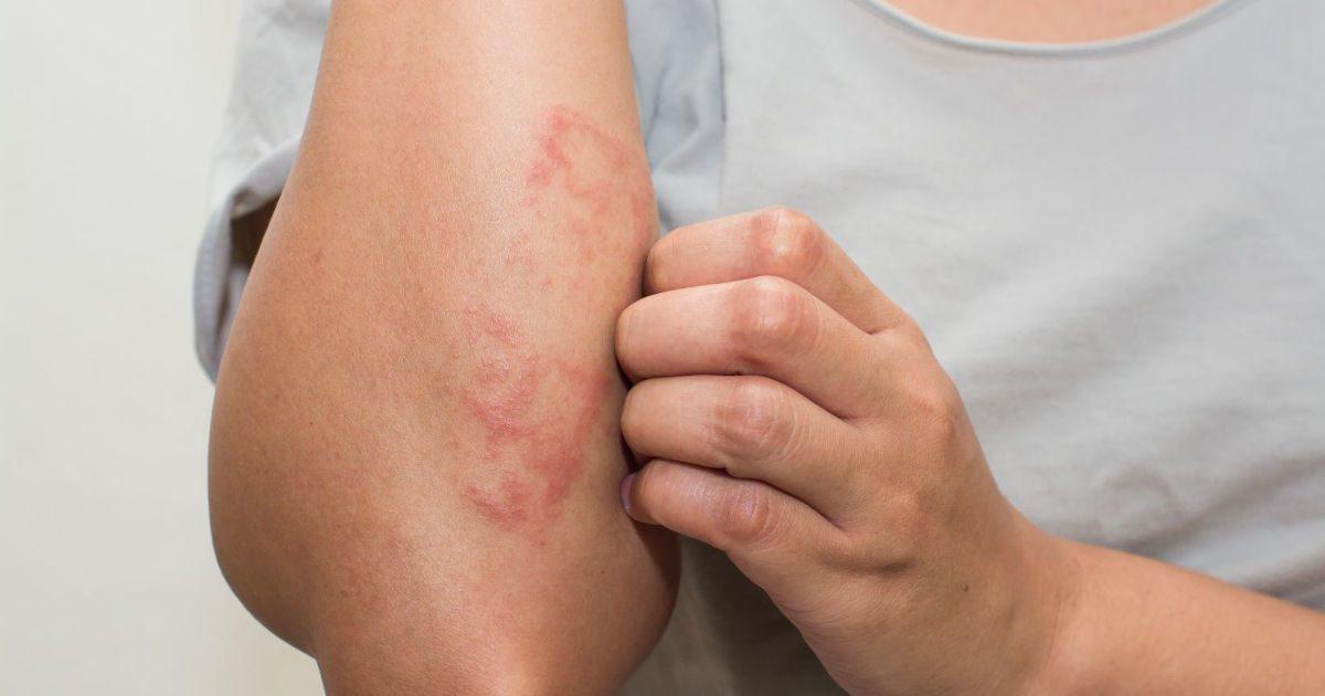 vörös viszkető foltok a testen fotó és leírás piros folt jelenik meg a lábán, és lehámlik
