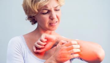segíteni a súlyos pikkelysömör gyógyításában diadance pikkelysömör kezelése
