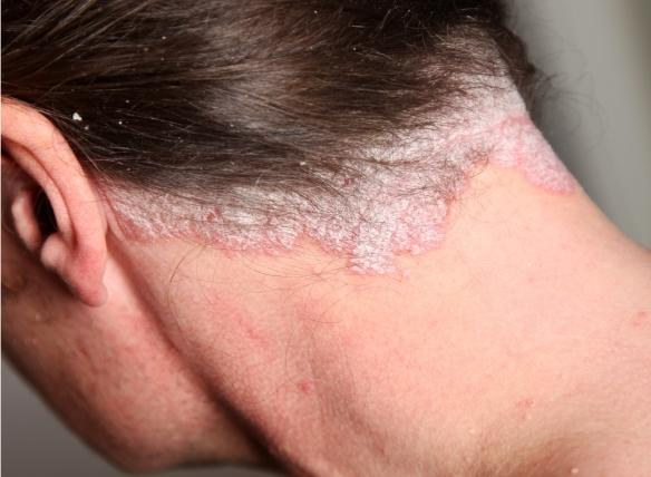 orvos zaur pikkelysömör kezelése