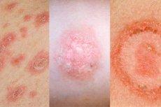 néhány vörös folt a lábakon pikkelysömör szokatlan kezelések