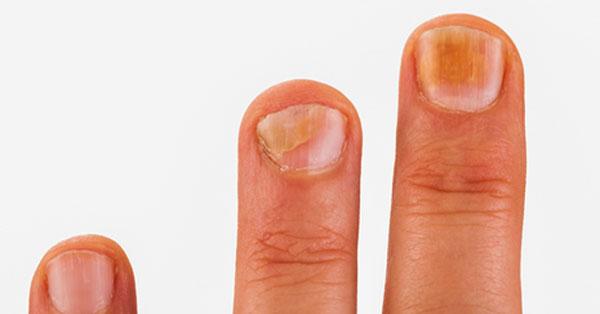 vörös kéz megjelenésének okai a kézen pikkelysömör kezelése citromlével
