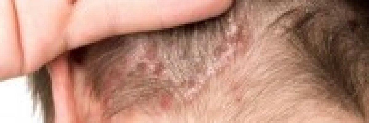 miért vannak vörös foltok a fejbőrön vörös viszkető foltok a térd alatt