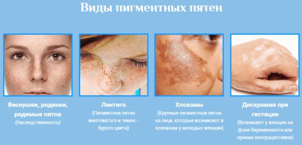mit kell tenni, ha száraz vörös foltok vannak az arcon