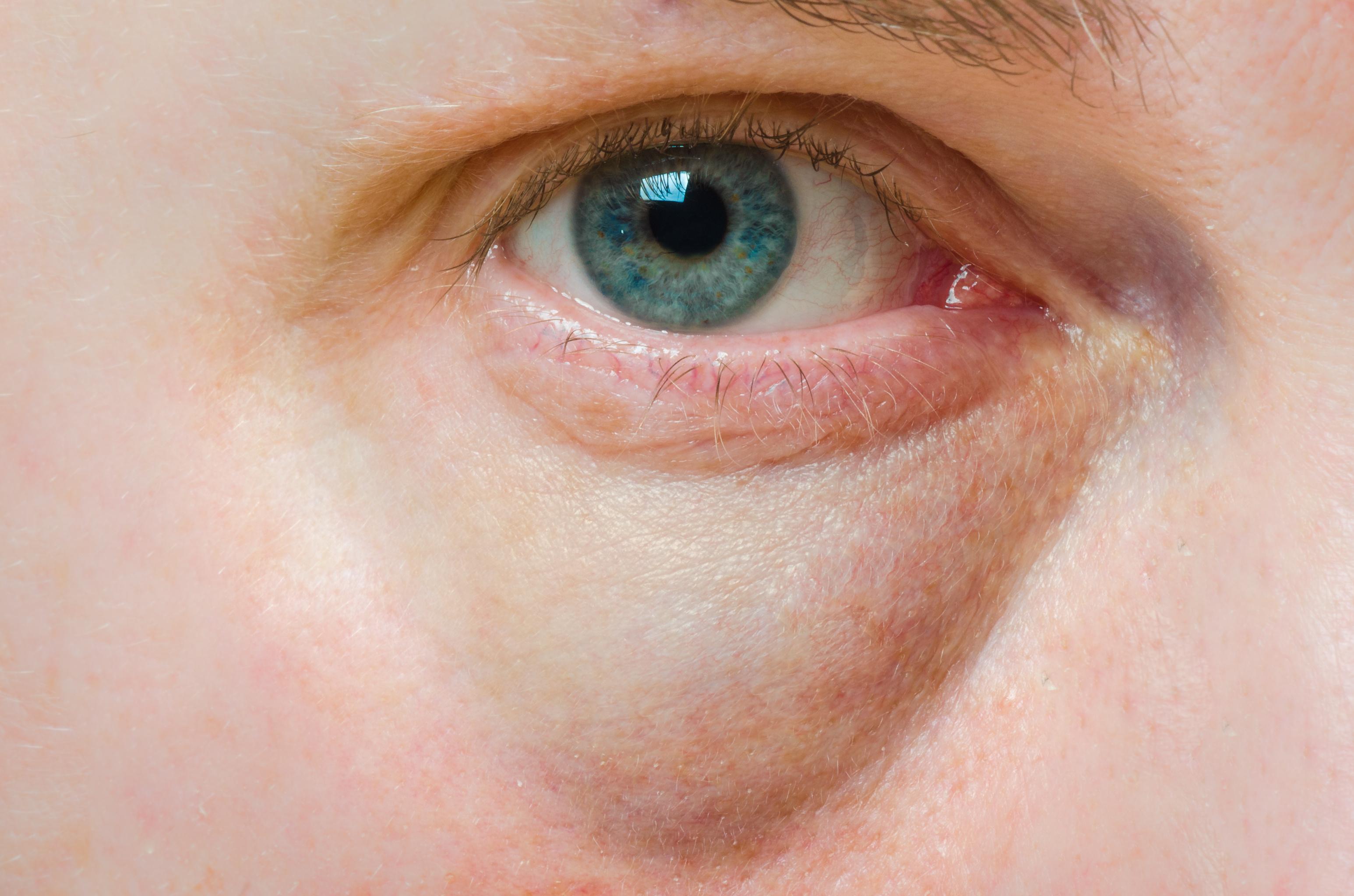 vörös folt hámlik a szem alatt