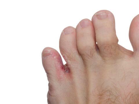 válaszolj ki gyógyította a pikkelysömör van egy piros folt a lábán és megsül