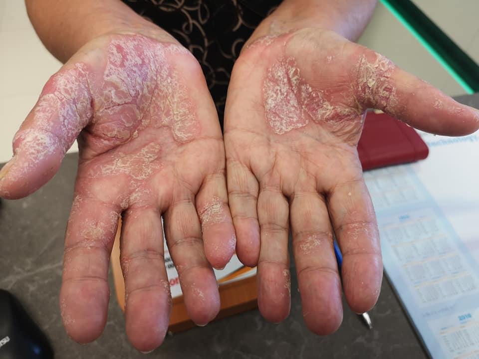 piros pikkelyes foltok a kezek fényképen)