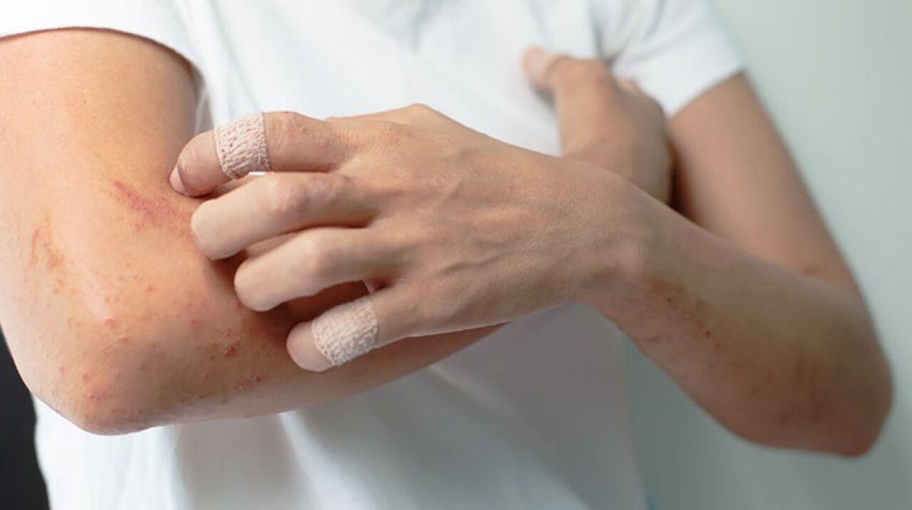 hogyan lehet aloe gygyszert pikkelysömörre pikkelysömör a térd kezelésén