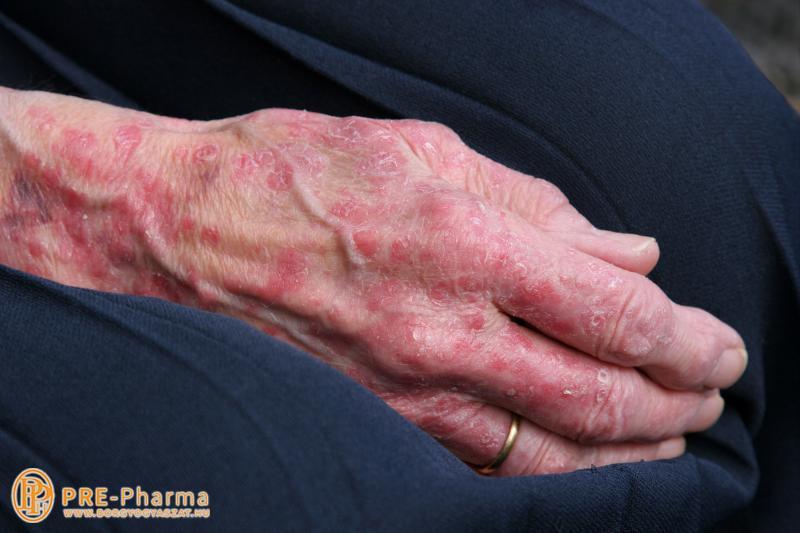 kezeld pikkelysömör a tenyereken vörös foltok jelentek meg a gyomorban és a karokon