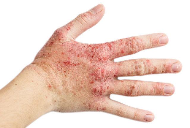piros folt jelenik meg a kezen és növekszik)