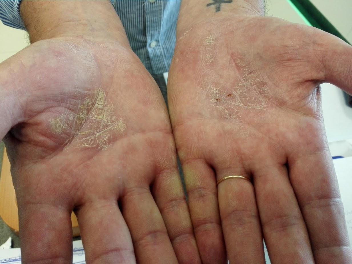 Vörös foltok a kezeken viszketnek és repedeznek Száraz, hámló bőr - Mik lehetnek a kiváltó okok?