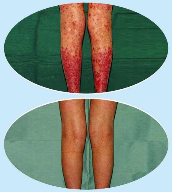 bőrkiütés vörös foltok formájában felnőtteknél hogyan kell kezelni