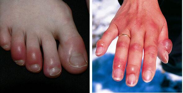 vörös viszkető foltok az ujjakon