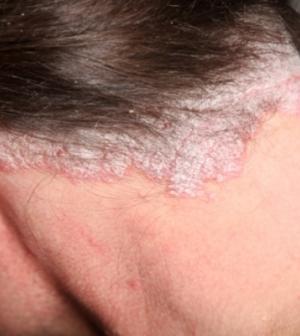 fejbőr pikkelysömör gyógyítható vörös foltok jelennek meg a nyakon és a fej viszket