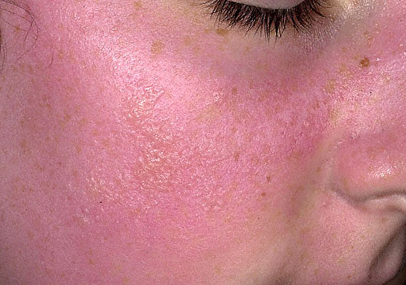 vörös forró pontok az arcon okozzák