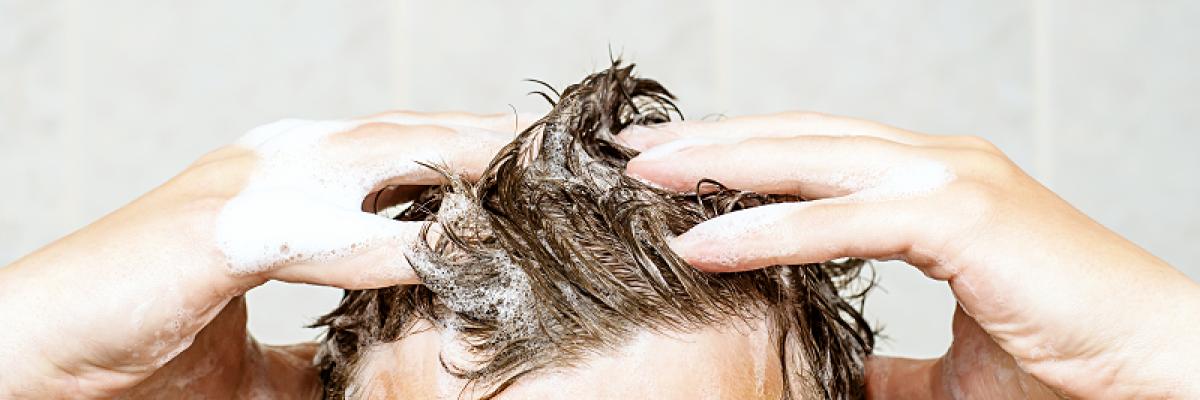 jó orvosság a fejbőr pikkelysömörére