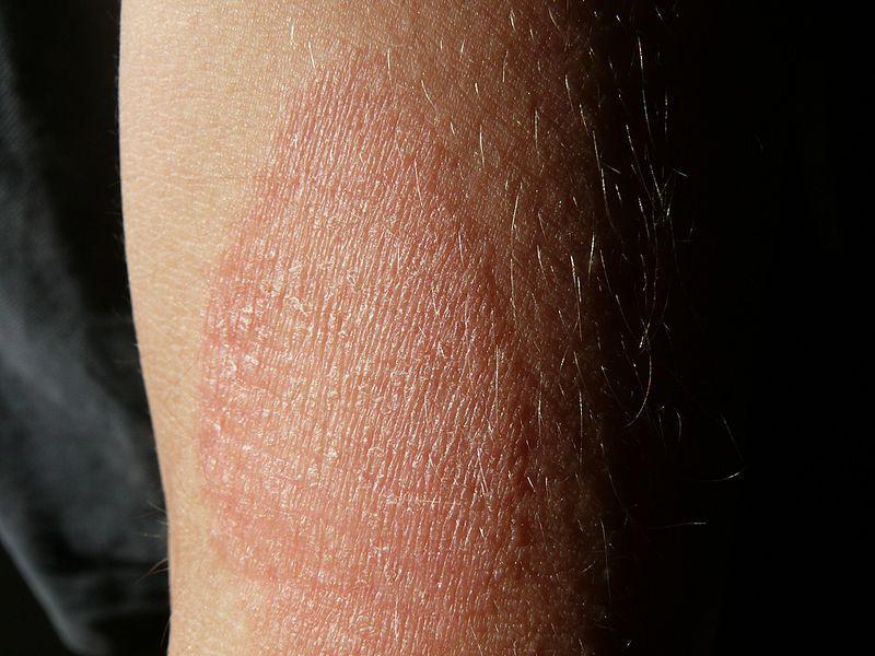 piros foltok jelennek meg a kezeken és eltűnnek piros pikkelyes folt az alsó lábszáron