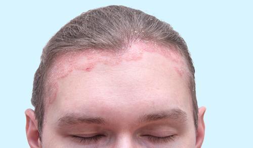 összeesküvés pikkelysömör a kezeken early stage psoriasis ear