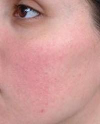 nagy vörös foltok az arcon a bőrön népi gyógymódok pikkelysömörhöz az egész testen
