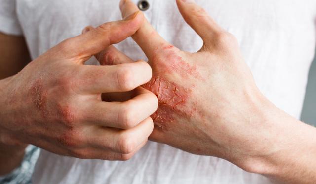 hogyan lehet eltávolítani a pikkelysömör kefék vörös foltok a fenéken okok és kezelés