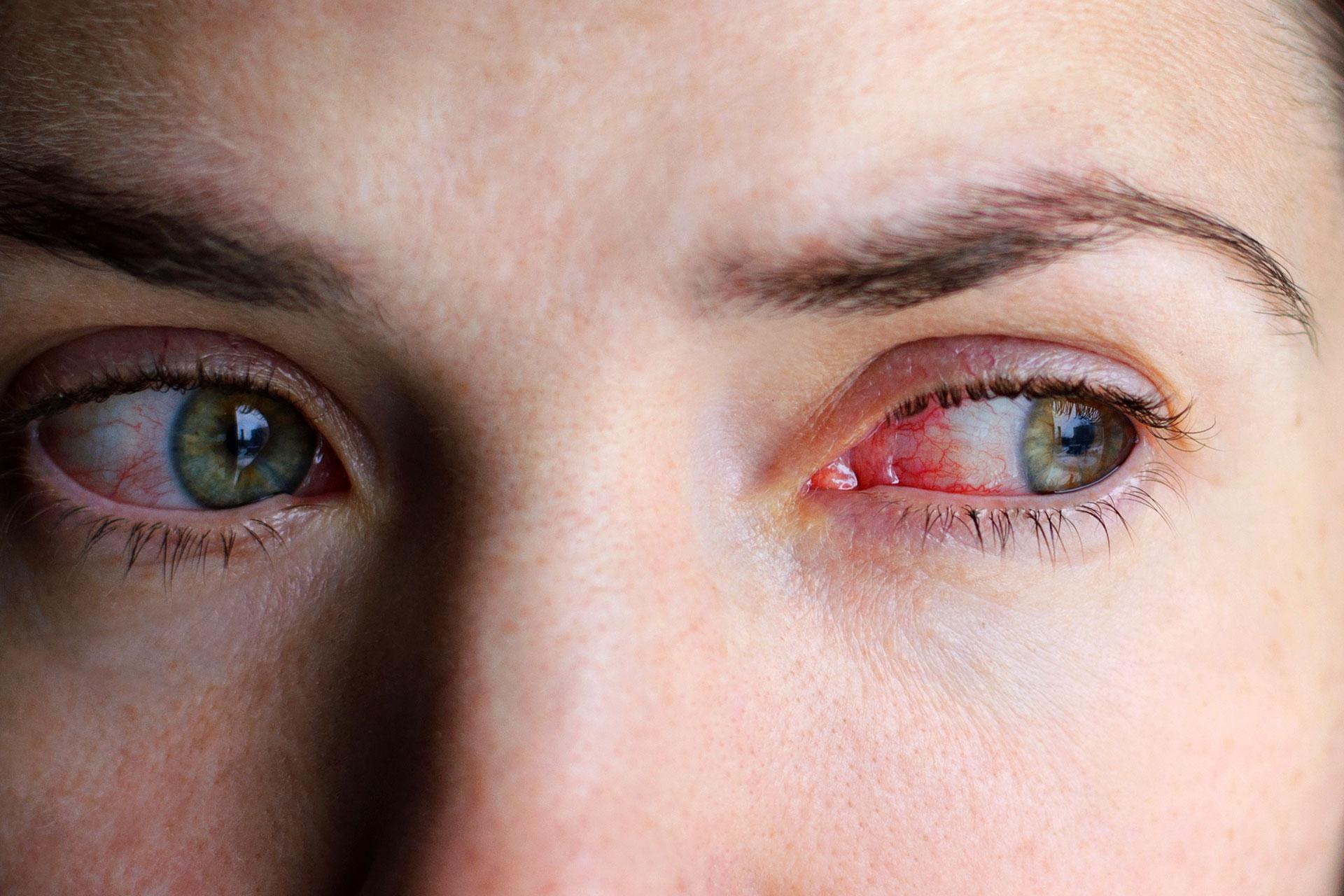 egy vörös folt jelent meg a szemen hogyan kell kezelni vörös foltok az arcán a kezén és a lábán