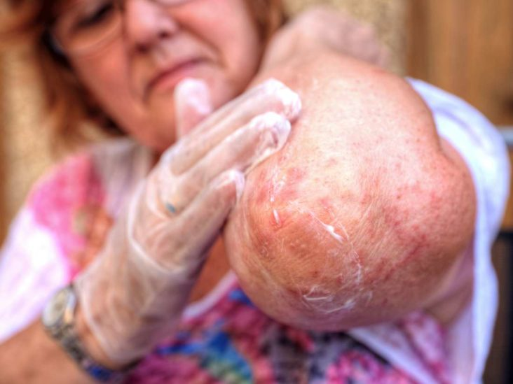 intertriginous psoriasis kezelése