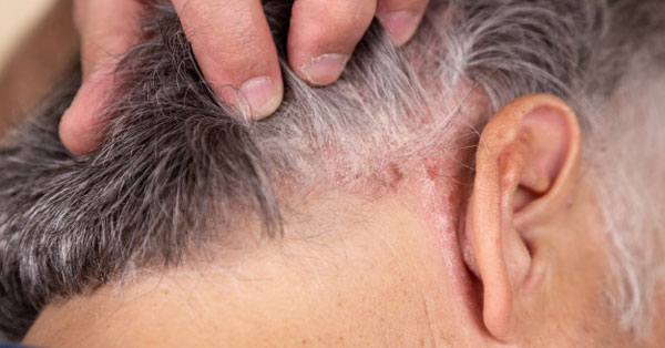 fejbőr psoriasis kezelése okai hogyan lehet kiegyenlíteni az arcbőrt a vörös foltokból