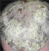 varasodás a fejen okai és kezelése fotó pikkelysömör