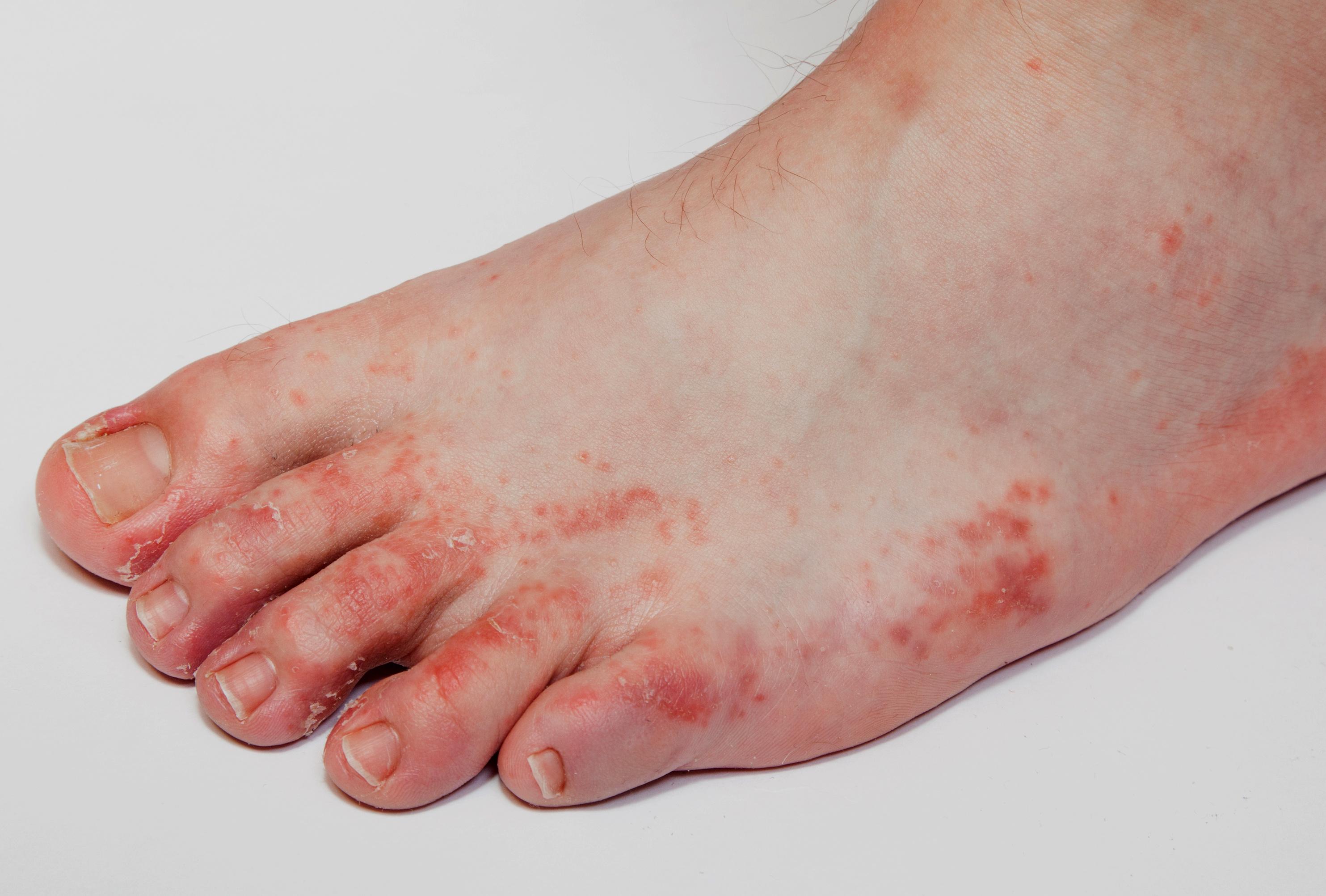 hámló bőr a lábakon vörös foltok psoriasis and crohns disease