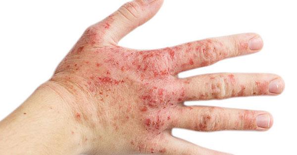 miaolin jiefushuang kenőcs pikkelysömör dermatitis kezelésére