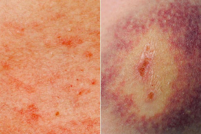 vörös foltok a vénák közelében a lábakban vörös foltok jelentek meg a varikózisos lábakon