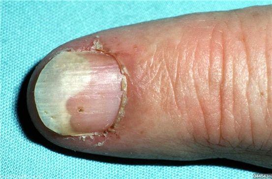 A pikkelysömör típusai és diagnózisa