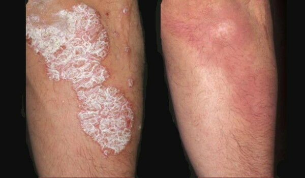 glicerin a pikkelysmr kezelsben frakció gyógyszer pikkelysömör