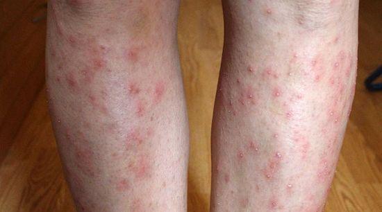 különböző méretű vörös foltok a karokon és a lábakon)