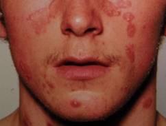 vörös foltok az arcon viszketés és égés szokatlan psoriasis kezelsek