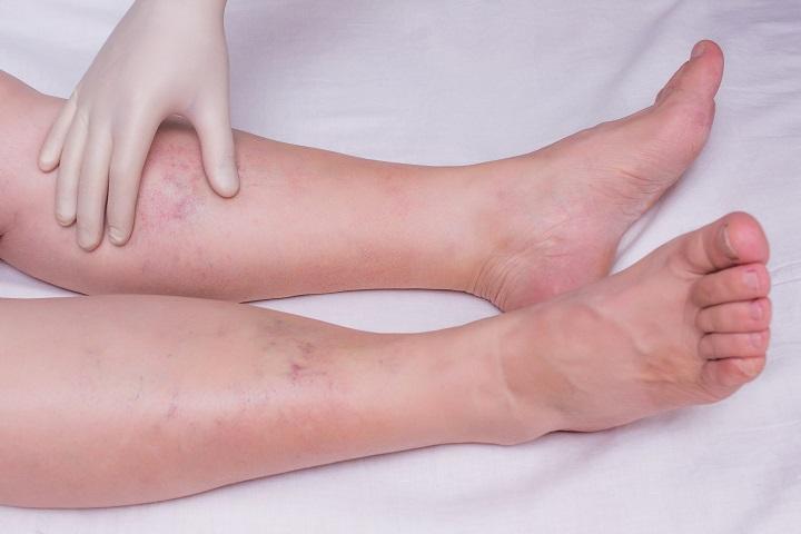 vörös foltok a lábakon és a láb duzzanata