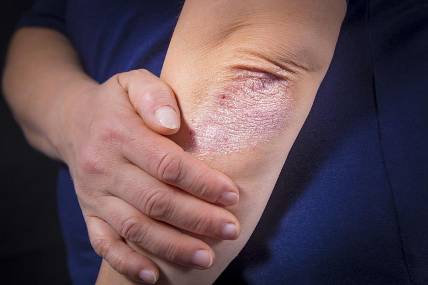 összeesküvés és pikkelysömör kezelése vörös foltok a karok hajtásain mi ez