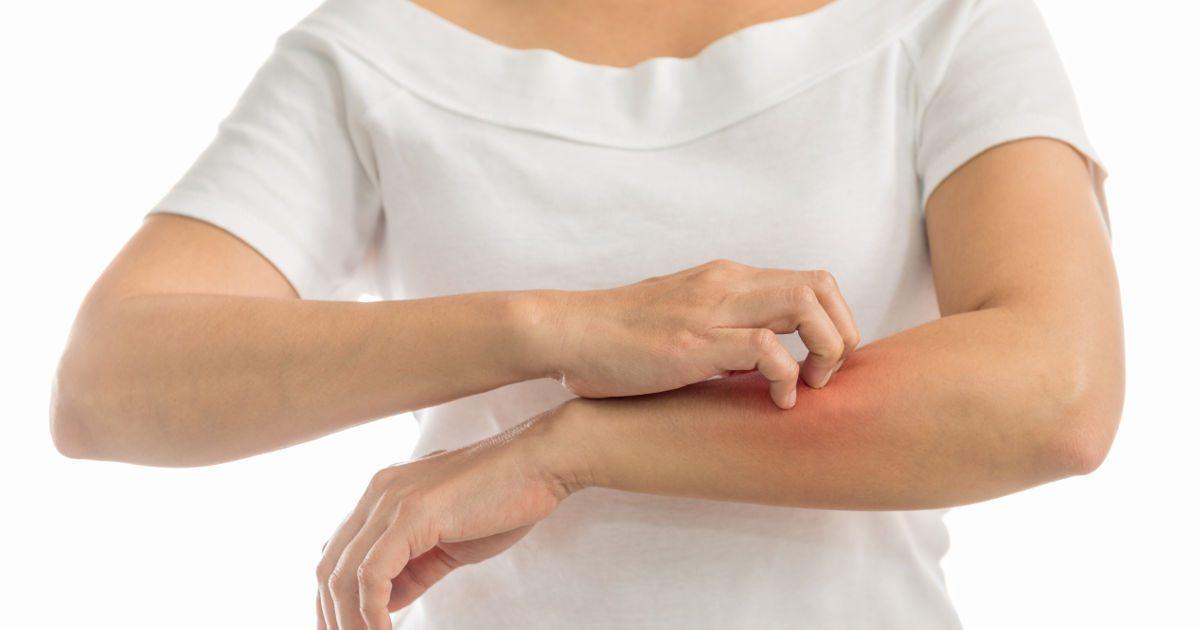 Viszkető, vörös kiütések: mi okozza őket? - EgészségKalauz, Vörös foltok a vállon és a karon
