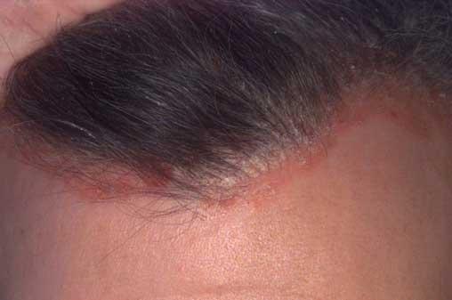 a talpán vörös folt van és viszket ekcéma kezelése arcon