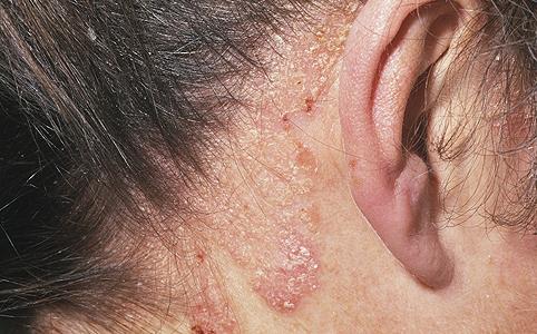 Volga régió központja a vitiligo és a pikkelysömör kezelésére balzsam drága 4 pikkelysömör