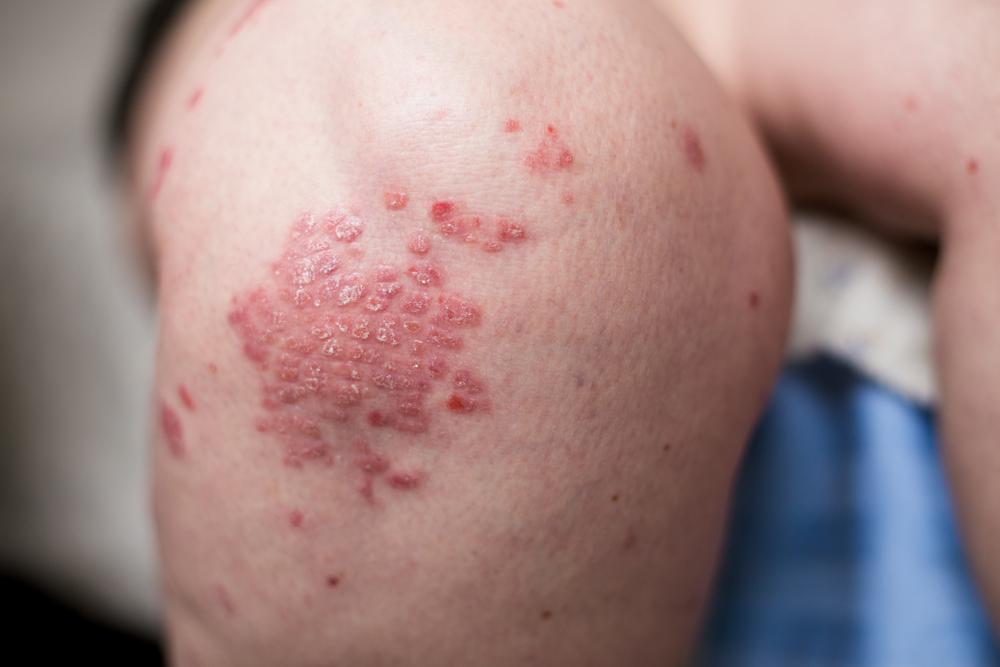 A térdén és a könyökén vörös foltok viszketnek, Fertőző betegségek