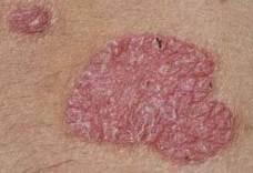 hogyan lehet eltávolítani a foltot a vörös bőrről
