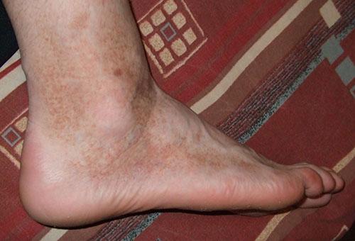 vörös lábakkal rendelkező folt jelent meg a lábán vörös foltok összeolvadása a hasán