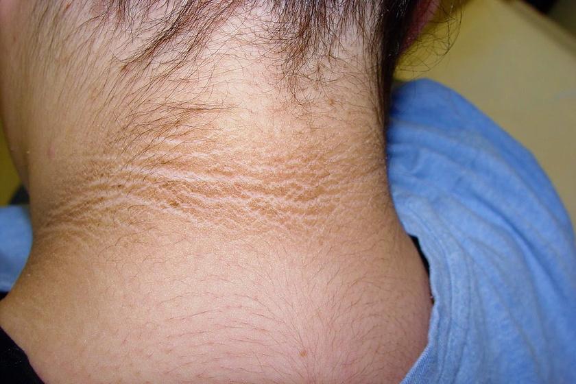 vörös foltok a nyakkivágás bőrén