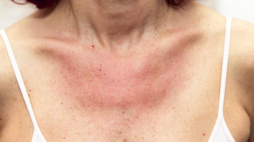 vörös egyenetlen folt a karon vörös foltok az arcon és a testen izgalommal