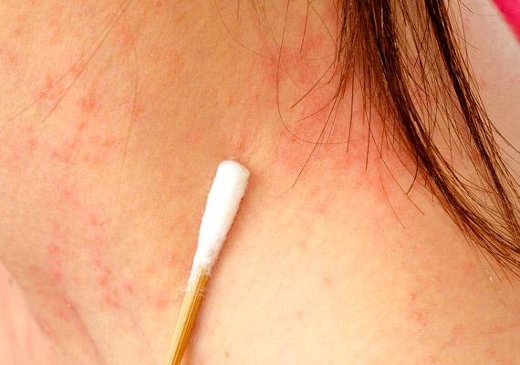 vörös foltok mint a hólyagok jelentek meg az arcon a térd mögött vörös foltok és viszketés