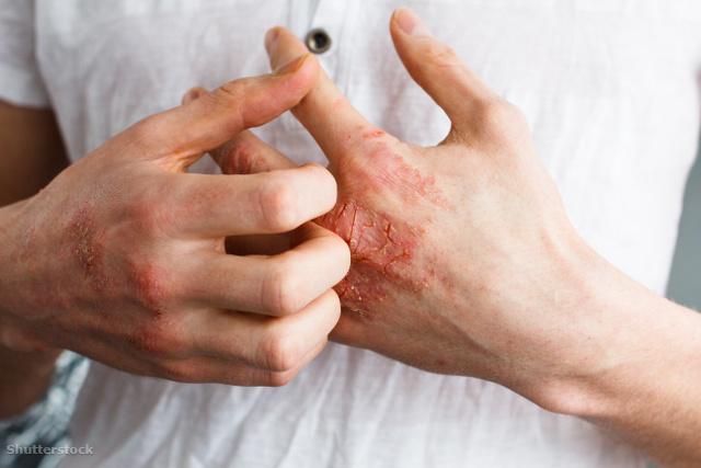 talált egy orvosságot pikkelysömörre maszk mézzel az arcra a vörös foltoktól
