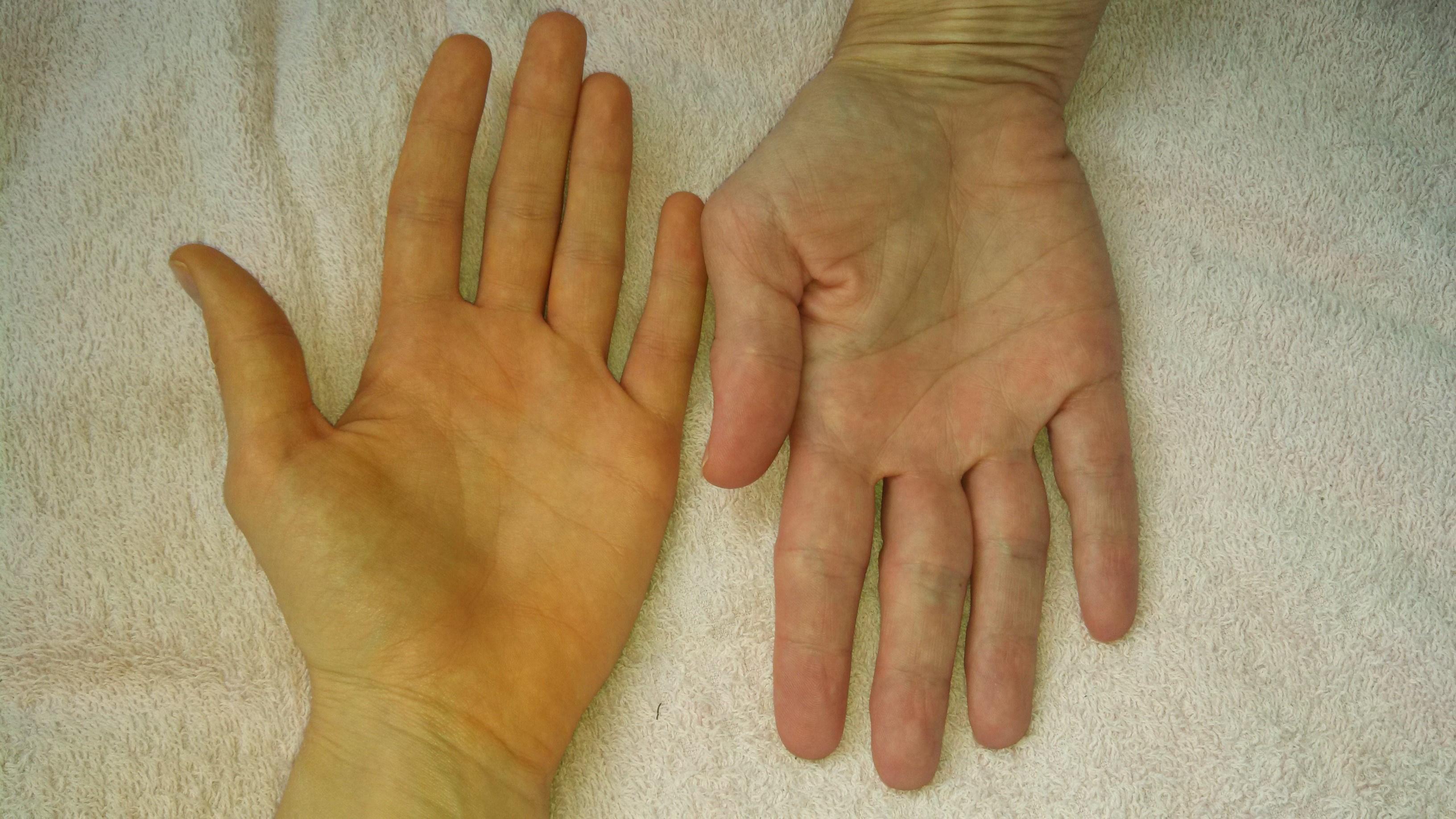 tenyér vörös foltokkal a bőr alatt vörös foltok jelentek meg a kézen