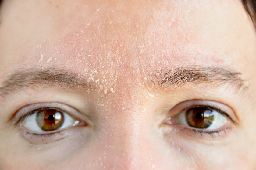 száraz bőr az arcon és pelyhek vörös foltokkal skin-cap kenőcs pikkelysömörről reviews